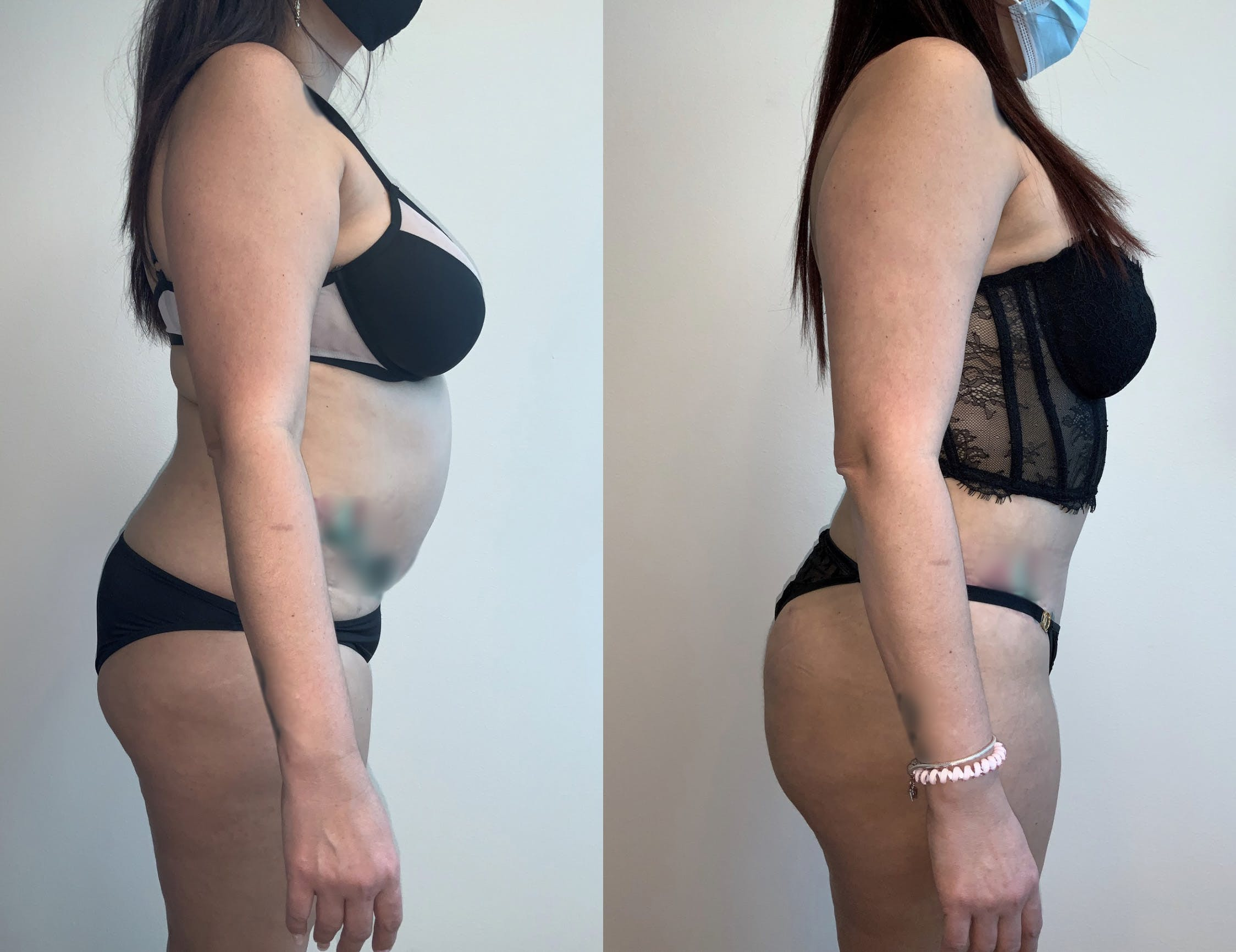 Tummy Tuck Gallery - Patient 54039385 - Image 2