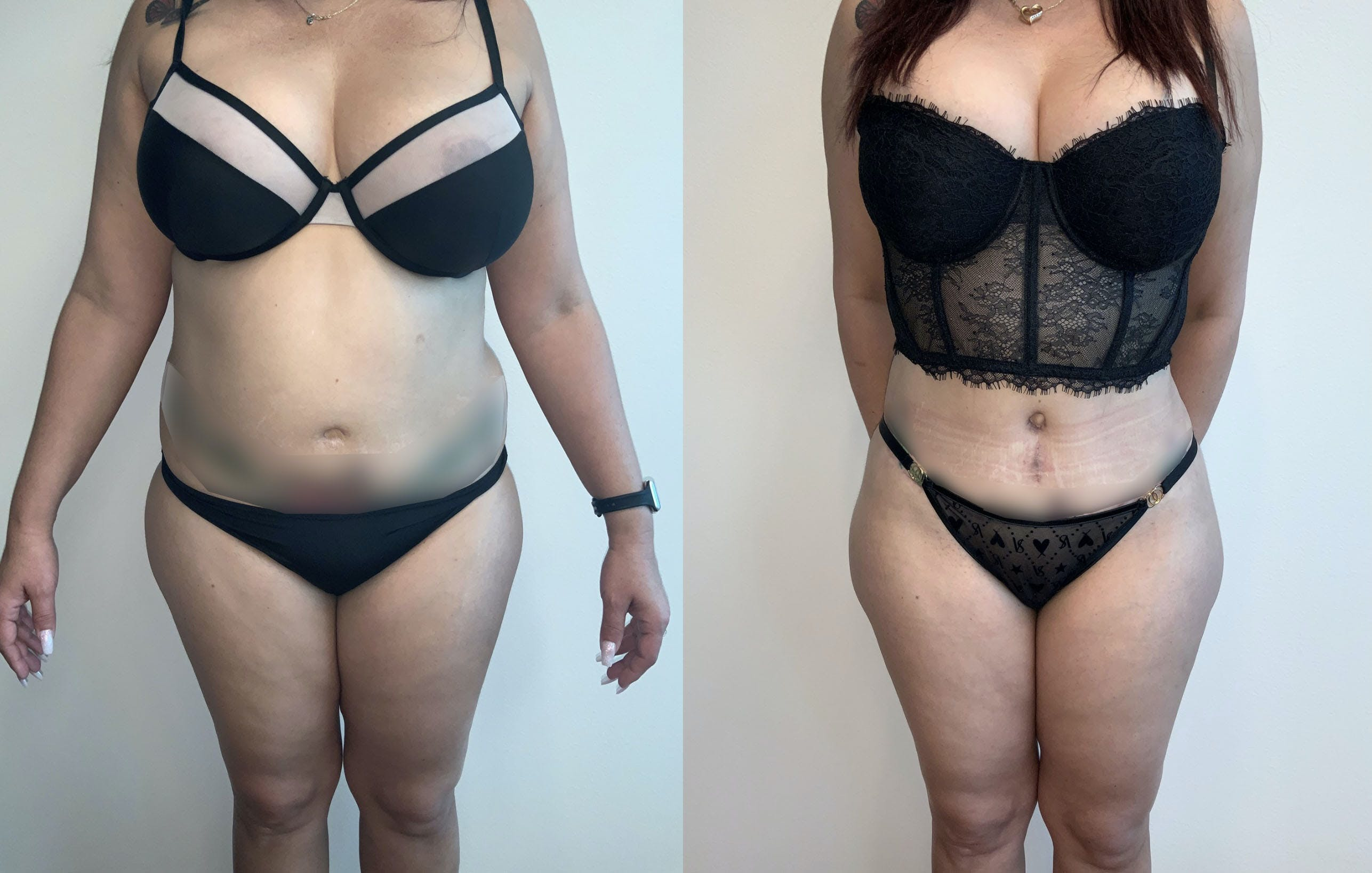 Tummy Tuck Gallery - Patient 54039385 - Image 1