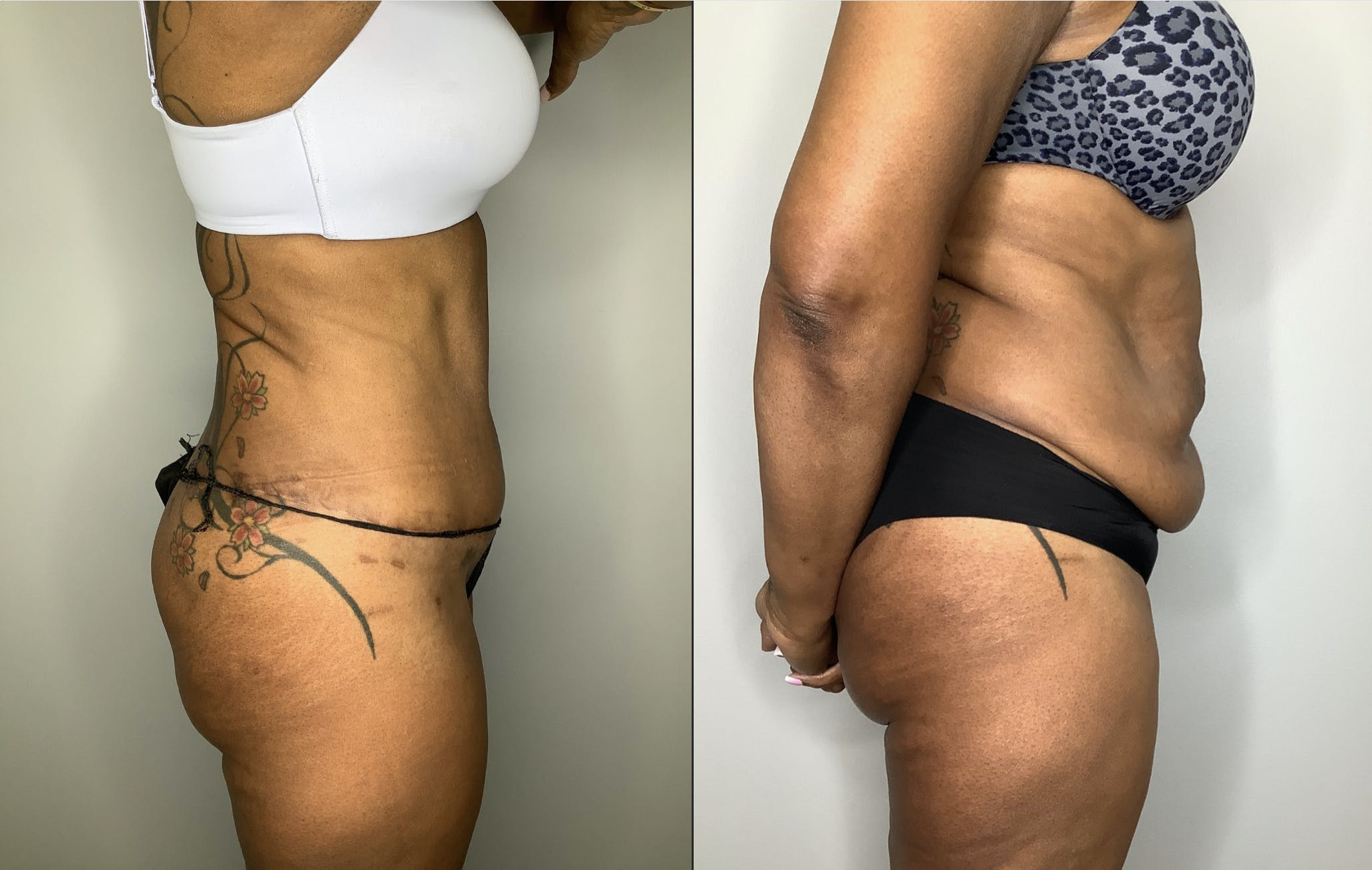 Liposuction Gallery - Patient 57580351 - Image 1