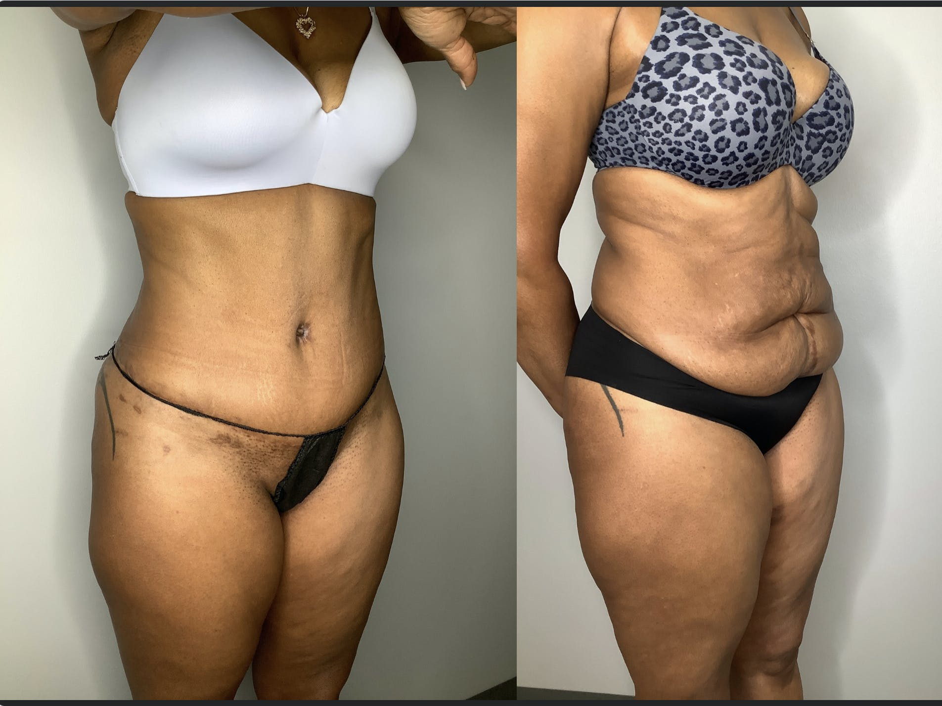 Liposuction Gallery - Patient 57580351 - Image 2