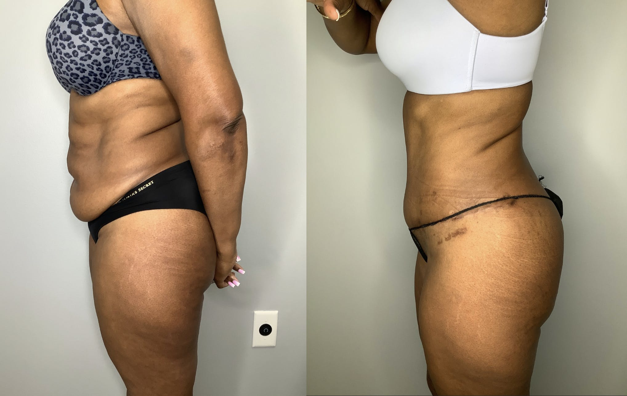 Liposuction Gallery - Patient 57580351 - Image 3
