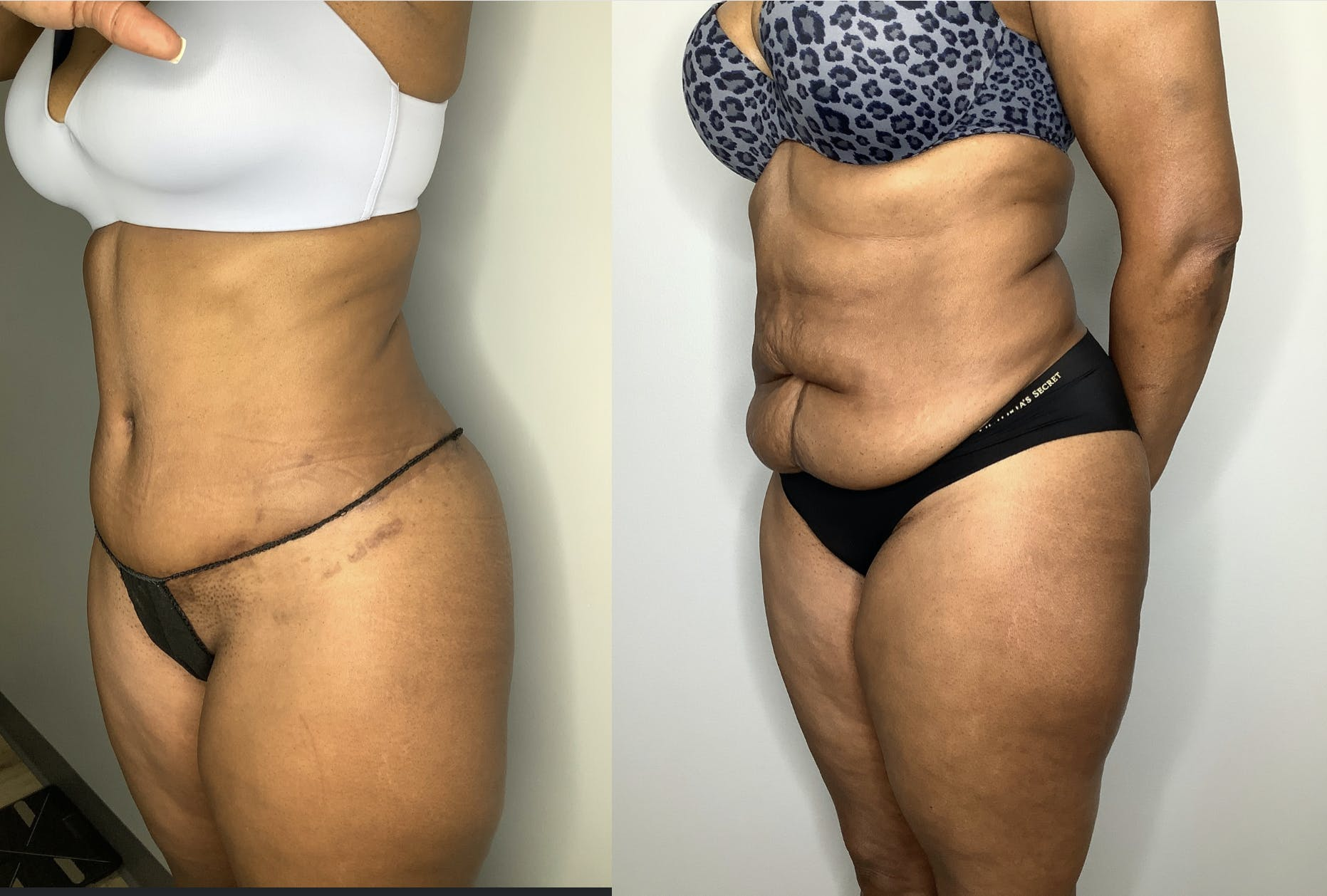 Liposuction Gallery - Patient 57580351 - Image 4