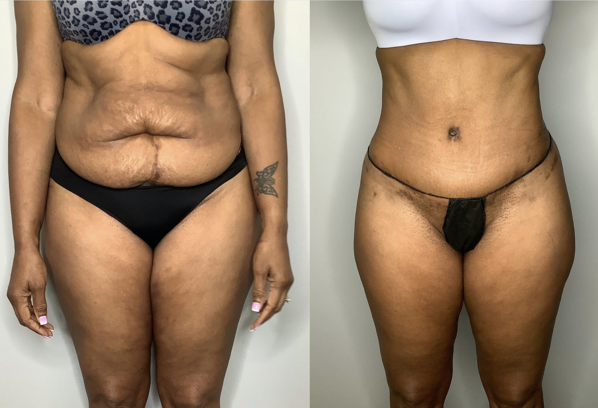 Liposuction Gallery - Patient 57580351 - Image 5