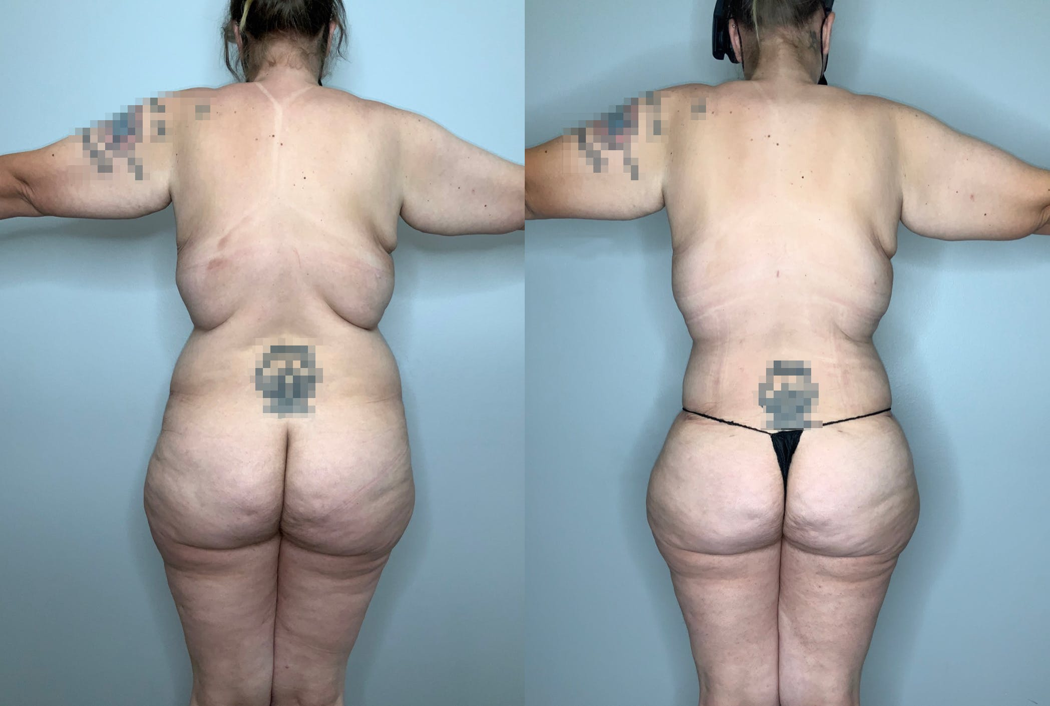 Liposuction Gallery - Patient 59474627 - Image 4