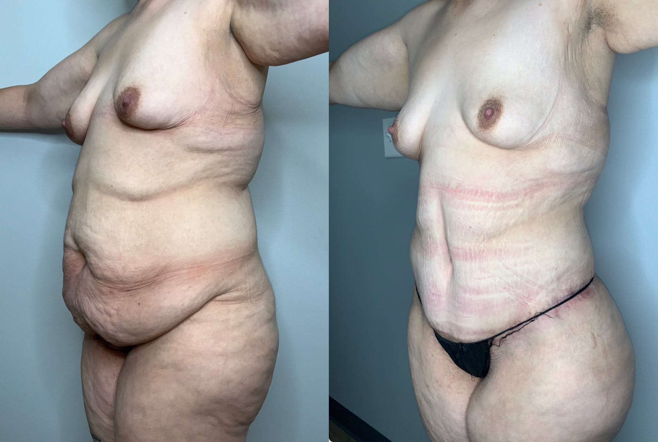 Liposuction Gallery - Patient 59474627 - Image 3