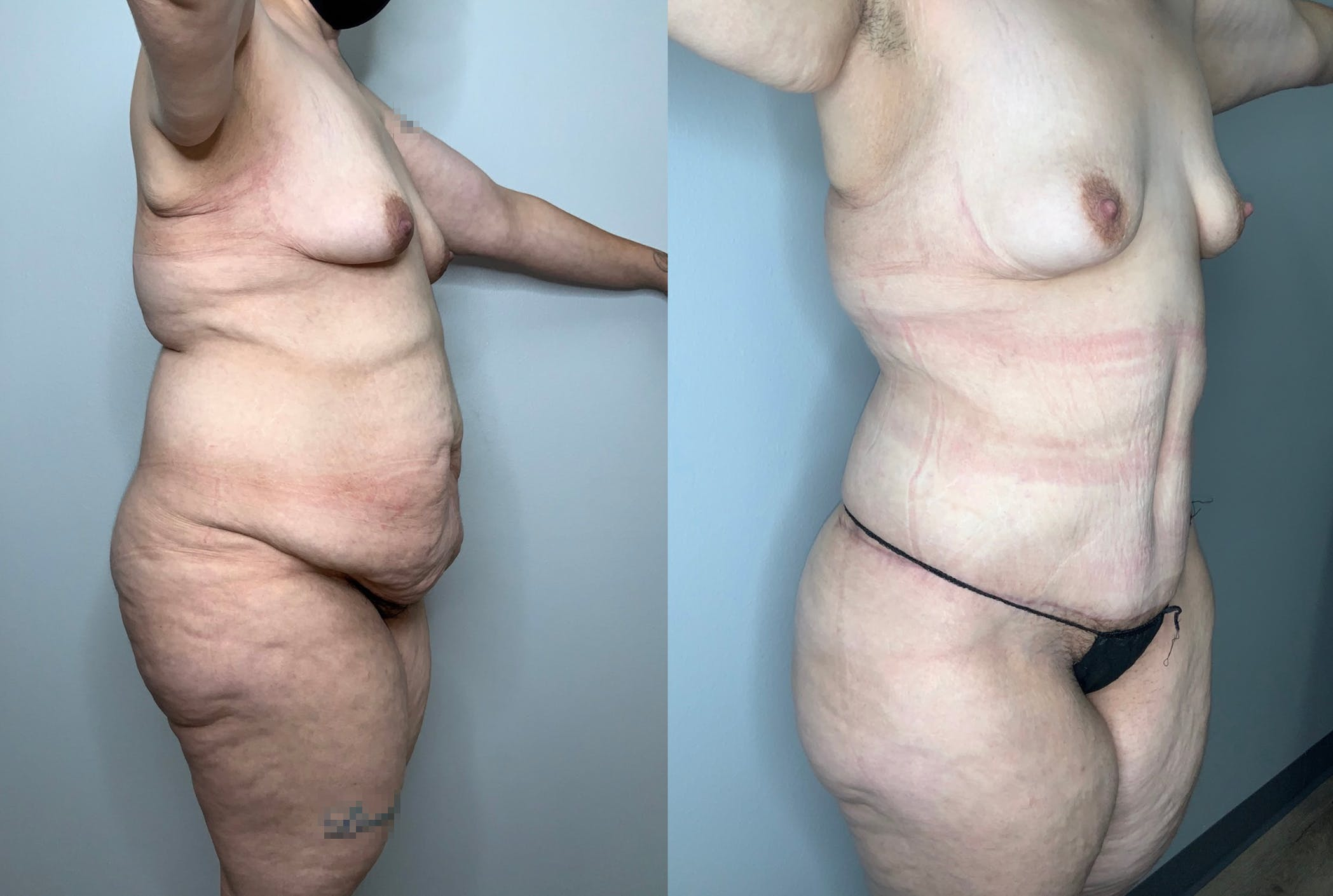 Liposuction Gallery - Patient 59474627 - Image 2