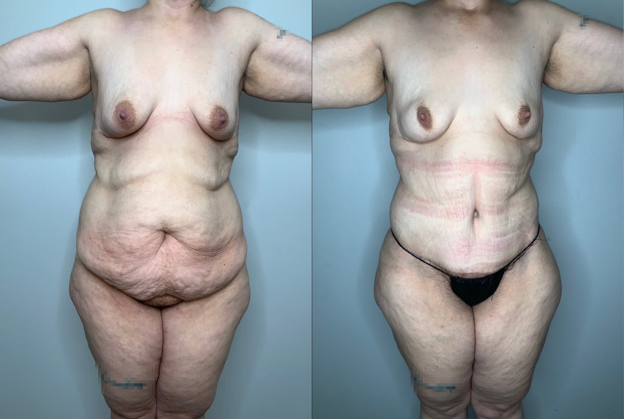Liposuction Gallery - Patient 59474627 - Image 1