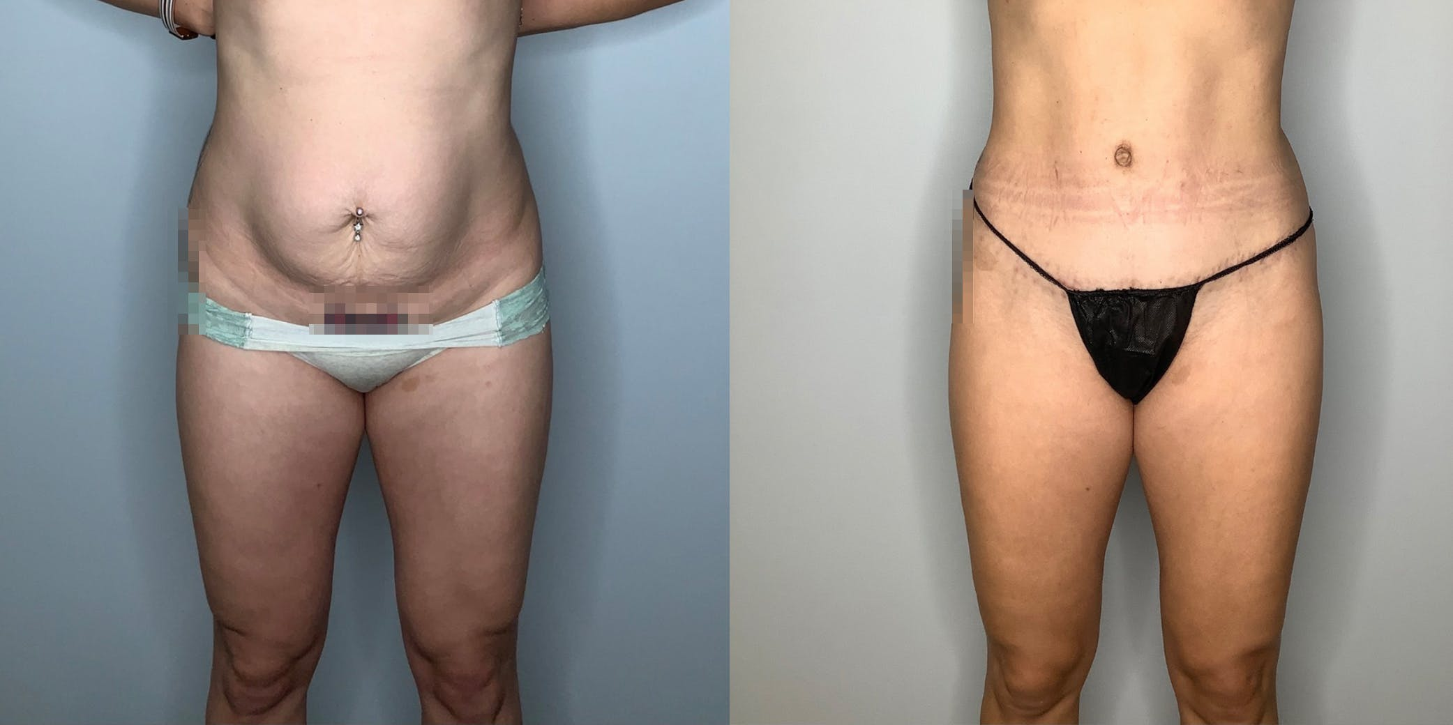 Liposuction Gallery - Patient 59474651 - Image 1