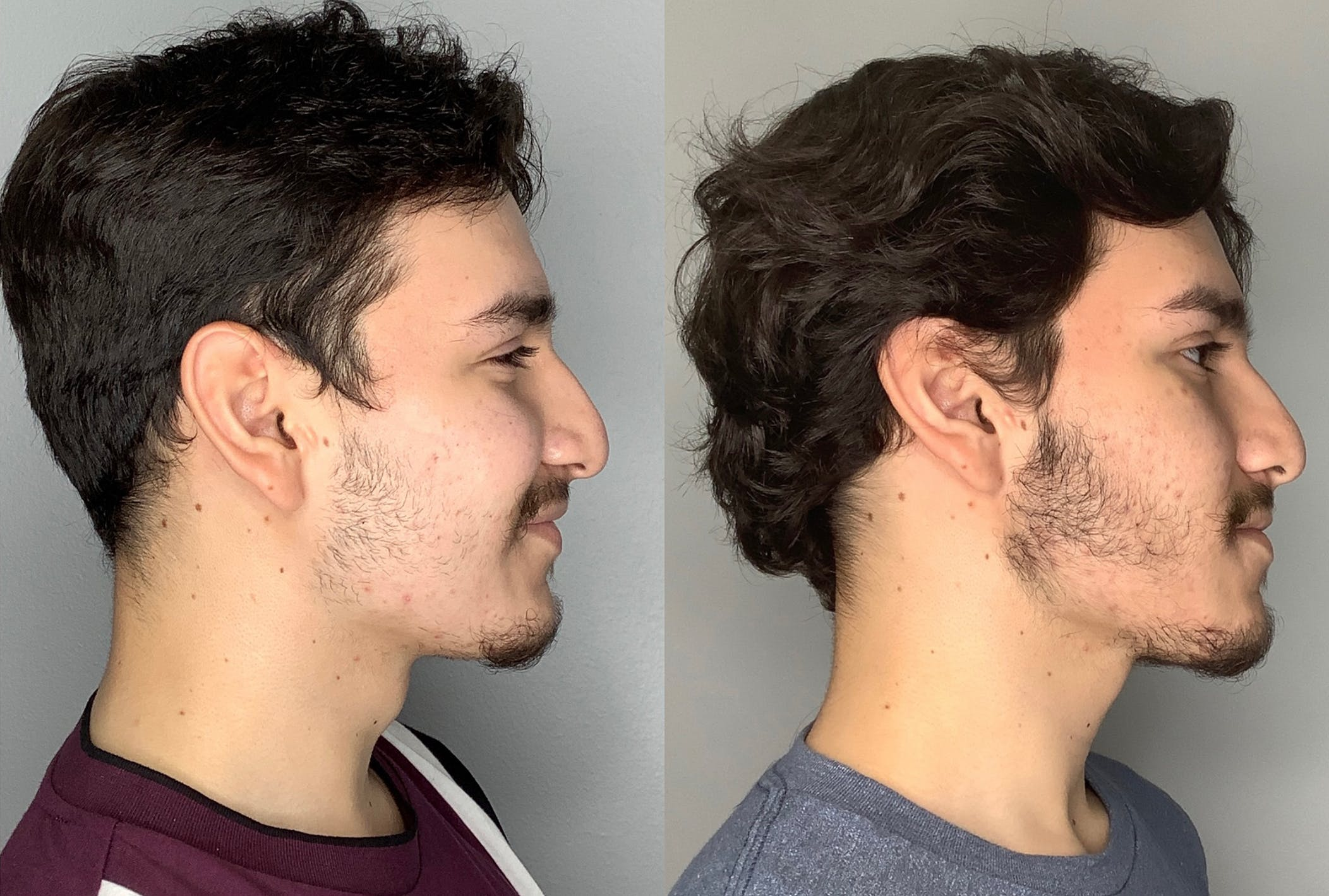 Buccal Fat Removal Gallery - Patient 59474666 - Image 3
