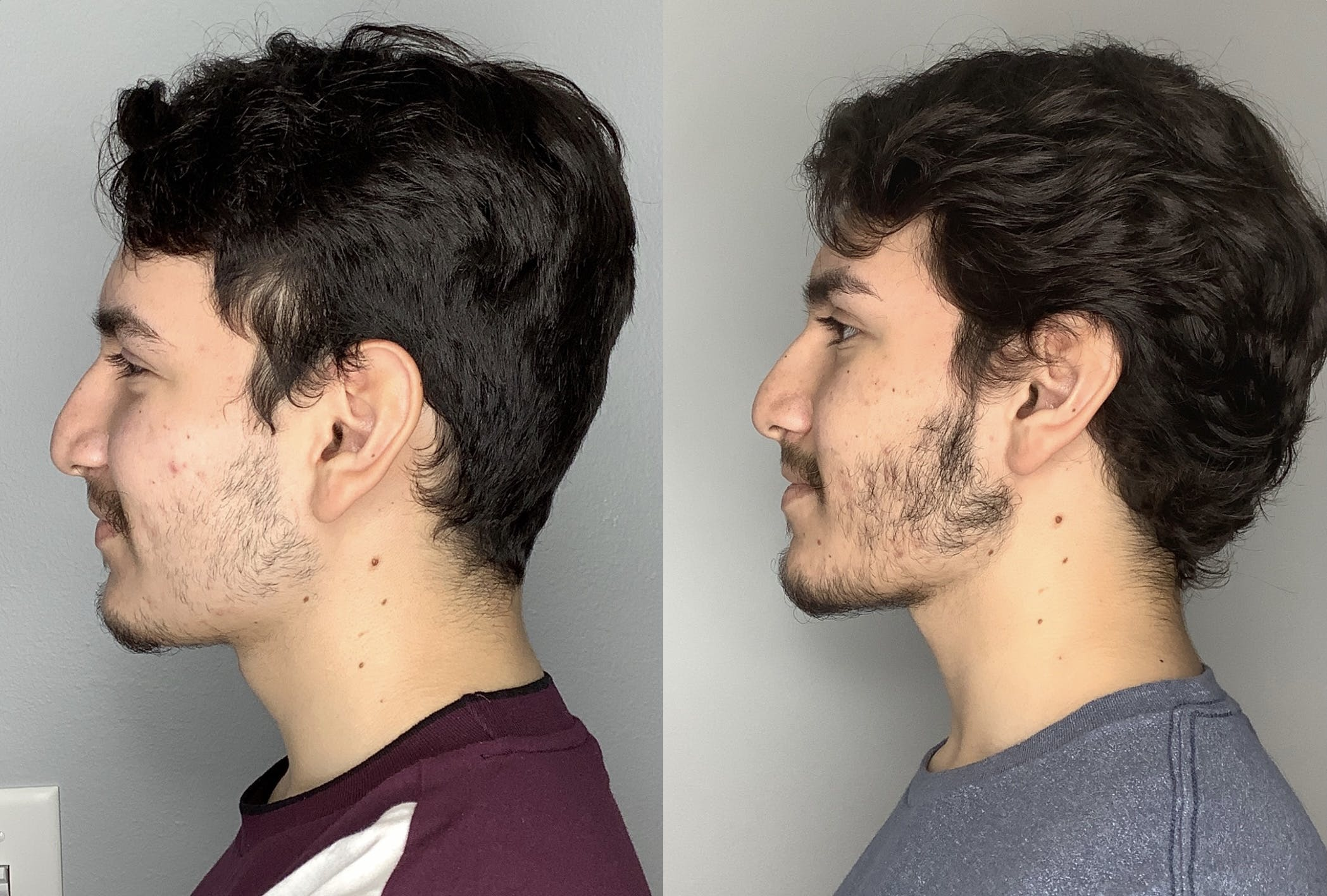 Buccal Fat Removal Gallery - Patient 59474666 - Image 4