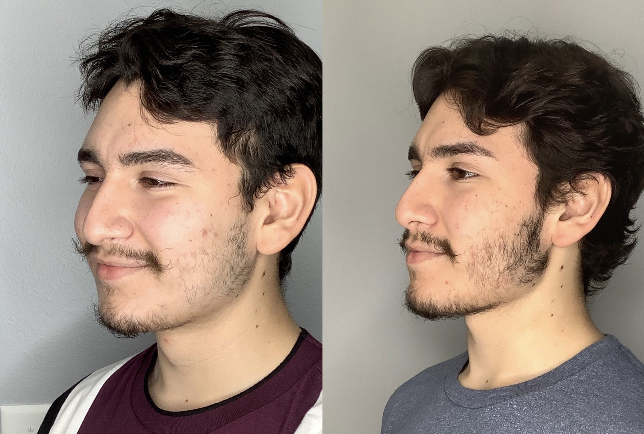 Buccal Fat Removal Gallery - Patient 59474666 - Image 5