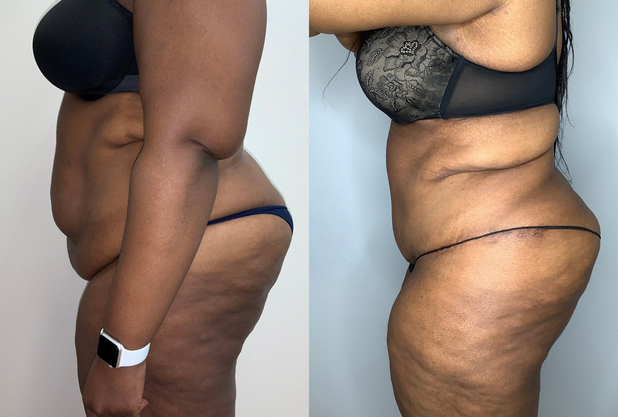 Tummy Tuck Gallery - Patient 59474677 - Image 2