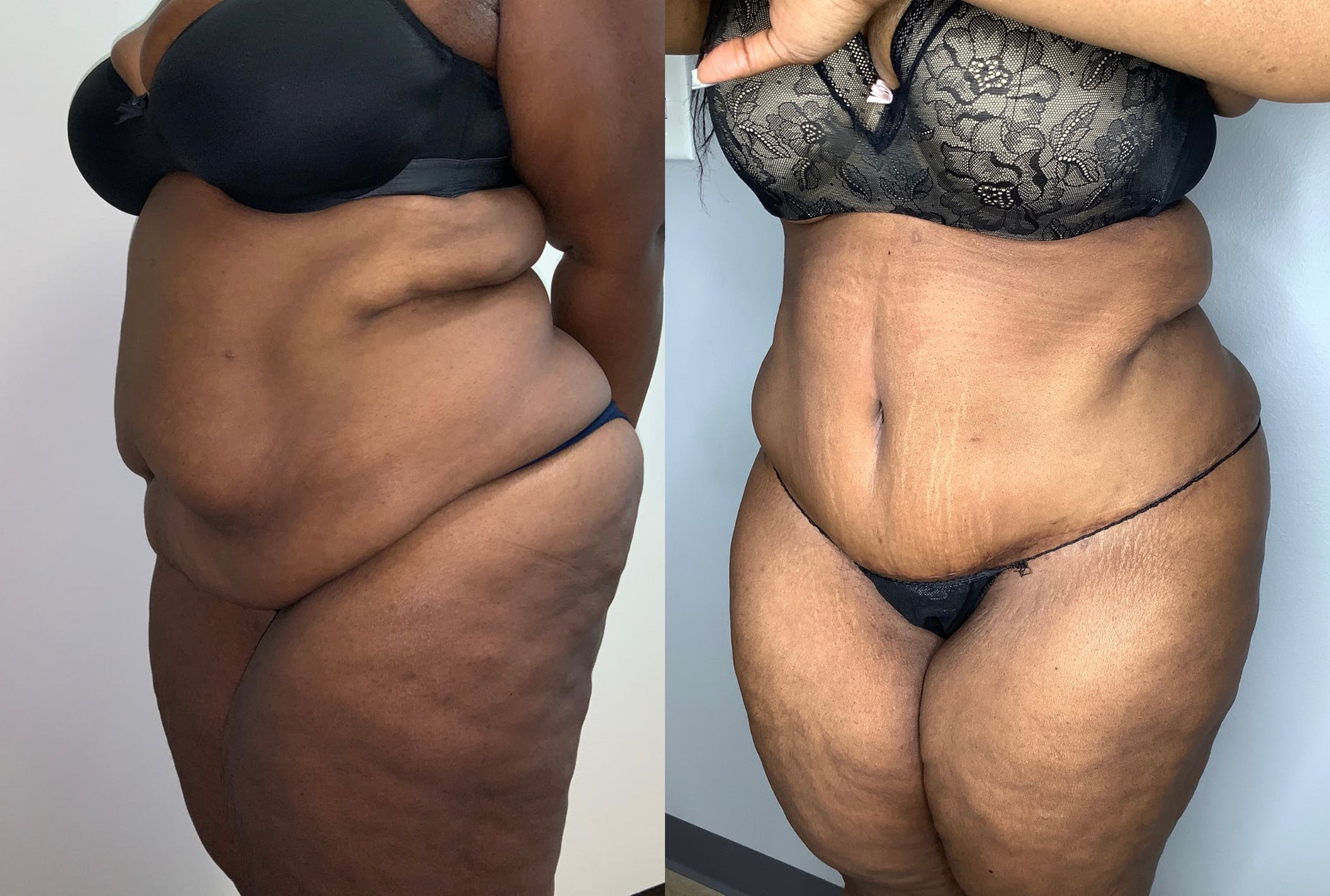 Tummy Tuck Gallery - Patient 59474677 - Image 3