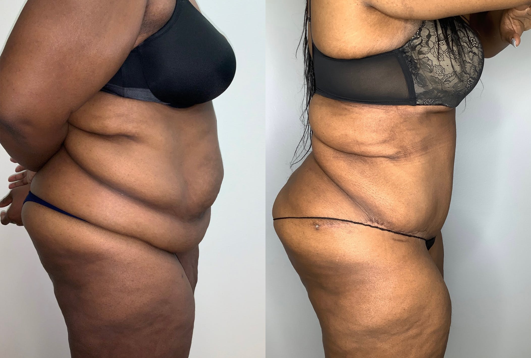 Tummy Tuck Gallery - Patient 59474677 - Image 5