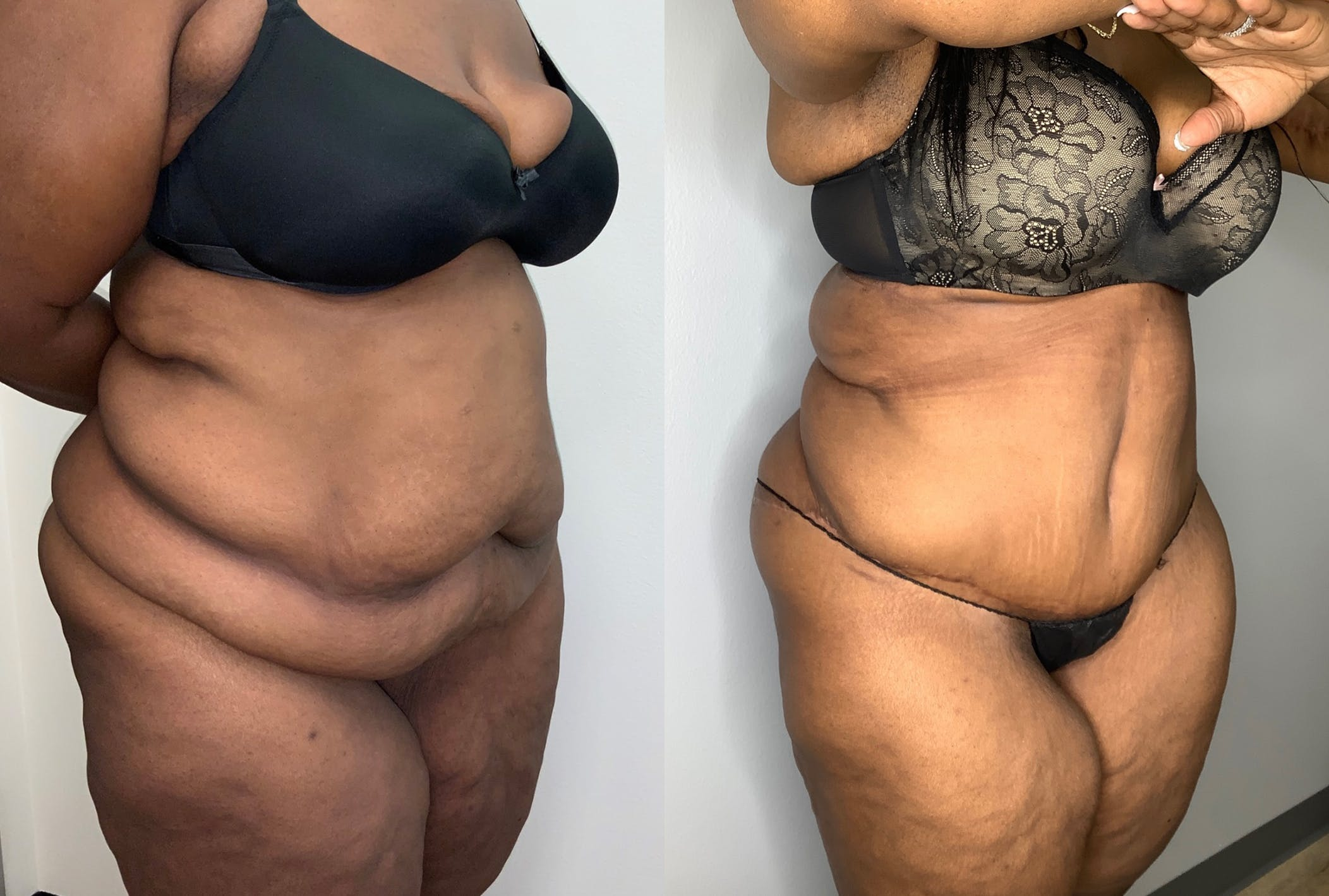 Tummy Tuck Gallery - Patient 59474677 - Image 4
