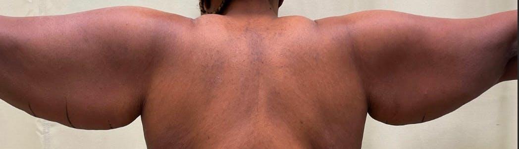 Brachioplasty (Arm Lift)  Gallery - Patient 59474681 - Image 1