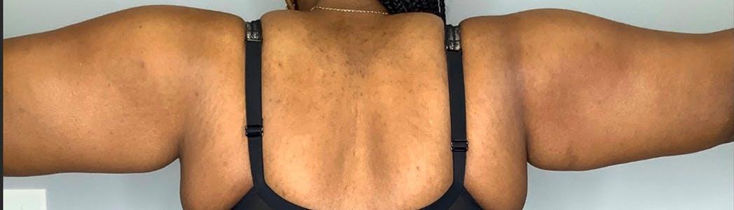 Brachioplasty (Arm Lift)  Gallery - Patient 59474681 - Image 2
