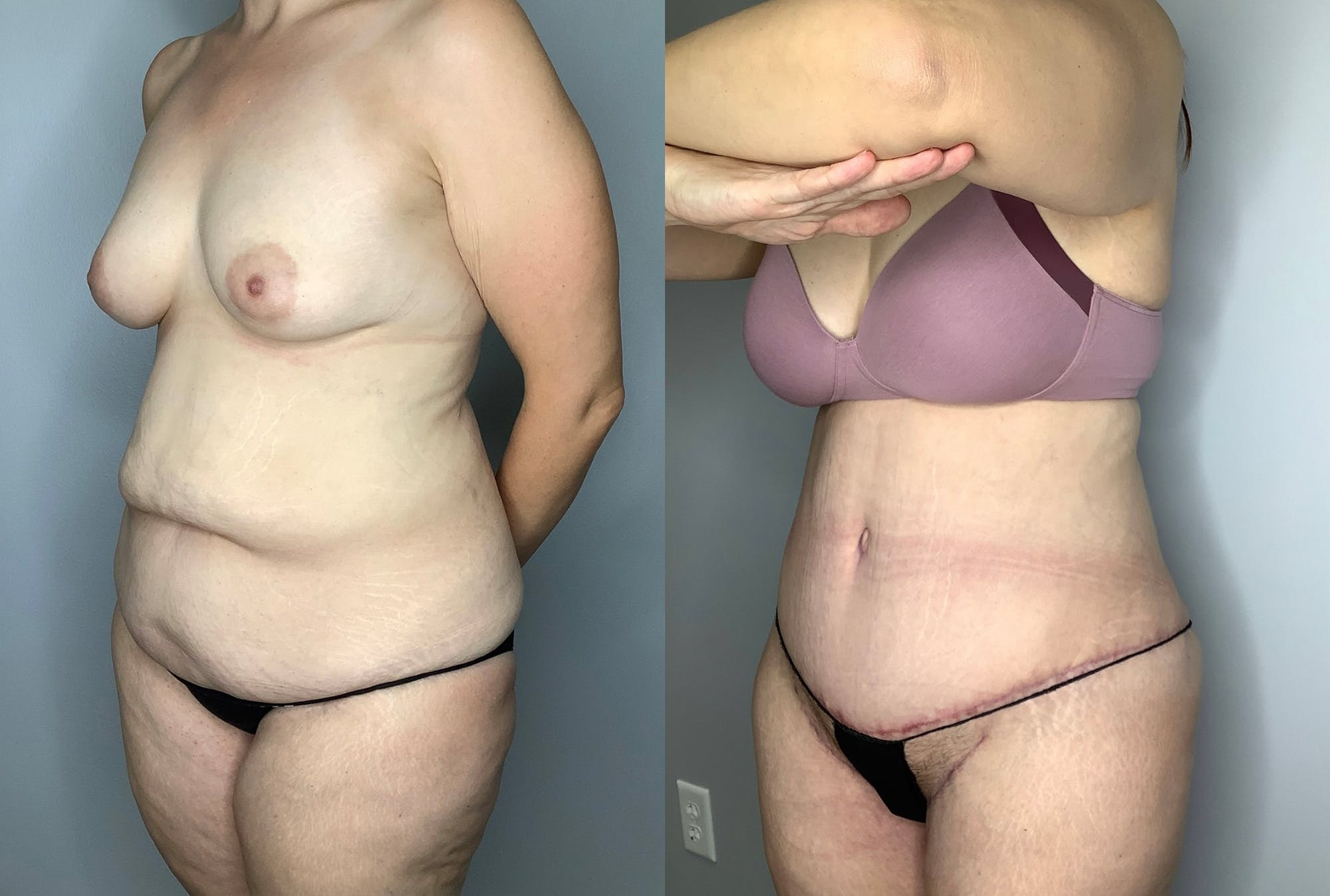 Tummy Tuck Gallery - Patient 64670005 - Image 2