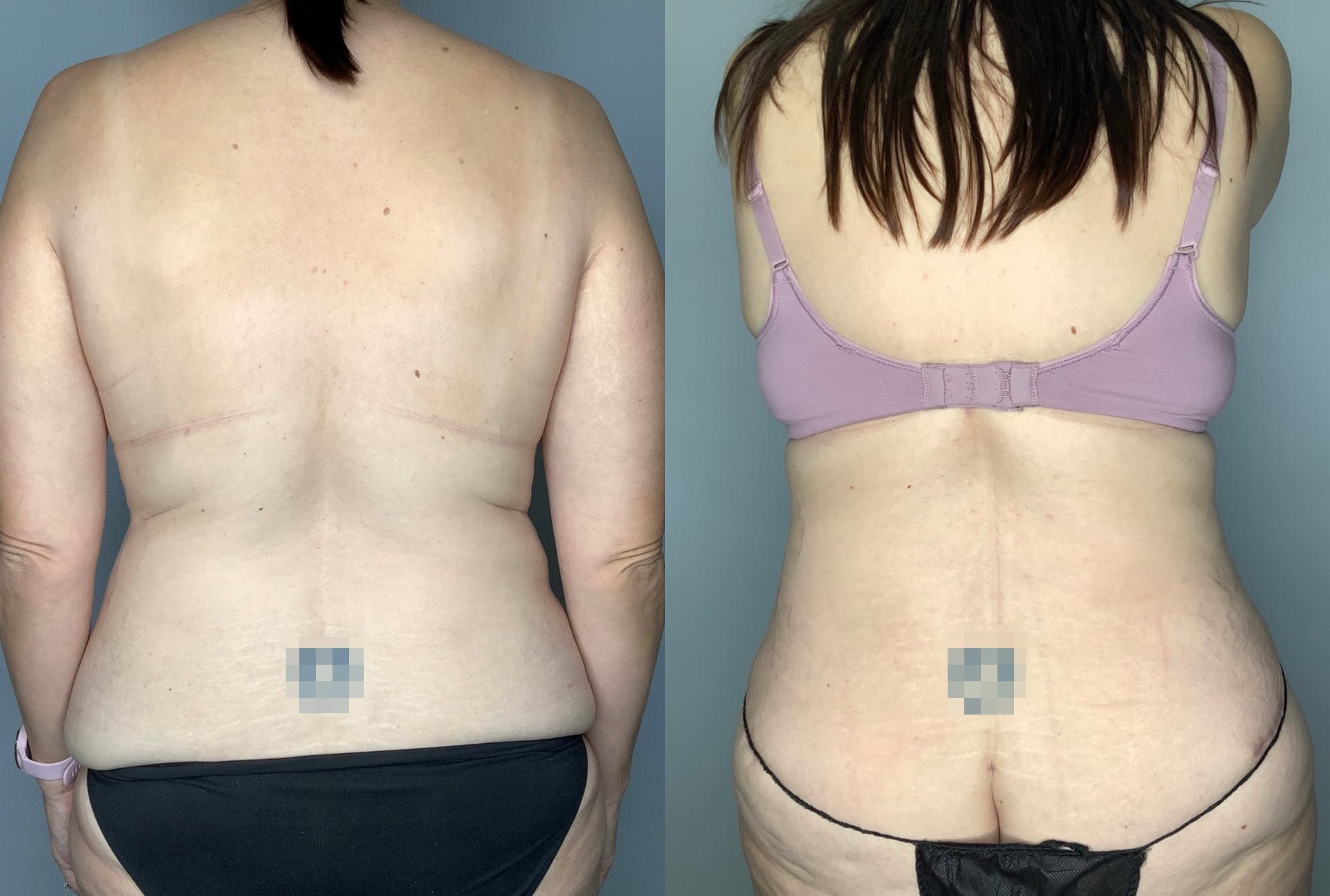 Tummy Tuck Gallery - Patient 64670005 - Image 4