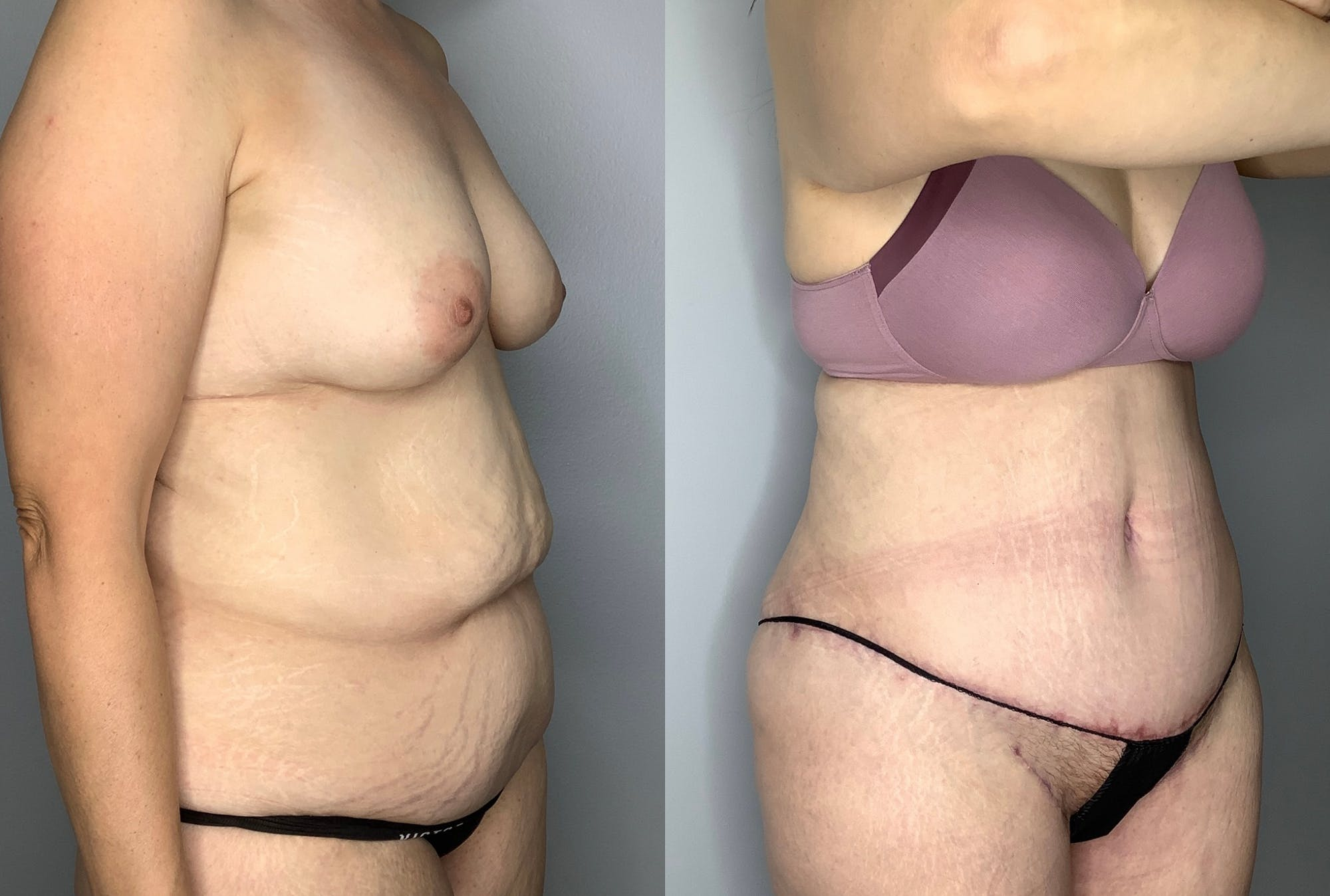 Tummy Tuck Gallery - Patient 64670005 - Image 5