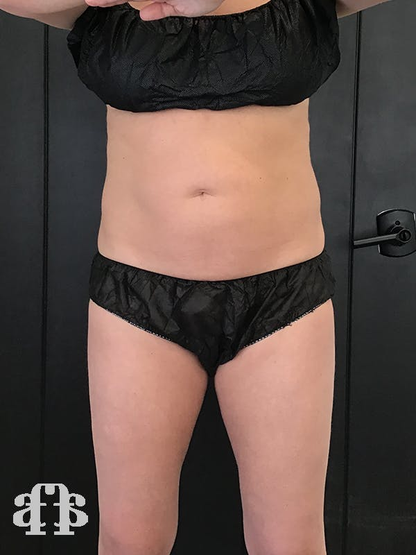 CoolSculpting Gallery - Patient 52660116 - Image 1