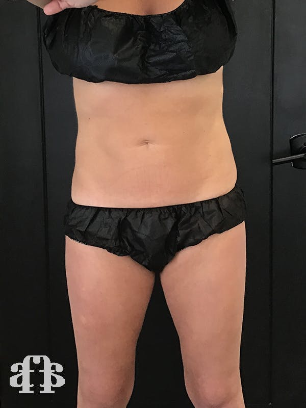 CoolSculpting Gallery - Patient 52660116 - Image 2