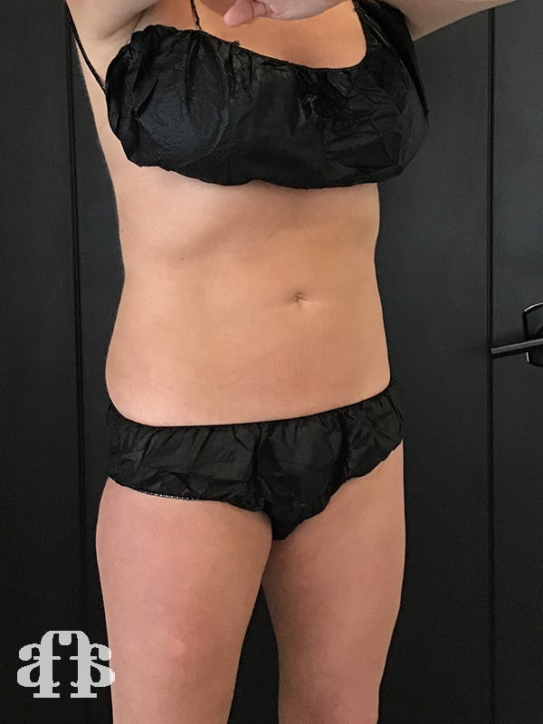 CoolSculpting Gallery - Patient 52660116 - Image 4