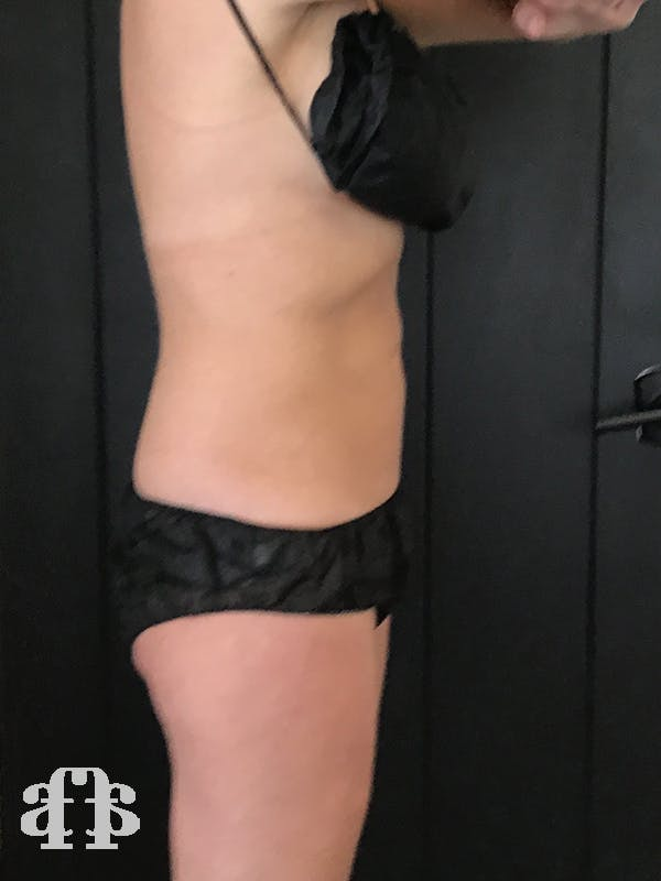 CoolSculpting Gallery - Patient 52660116 - Image 6