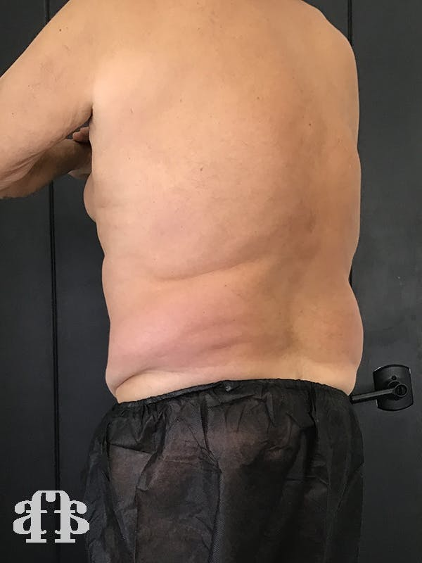 CoolSculpting Gallery - Patient 52660119 - Image 1