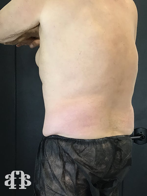 CoolSculpting Gallery - Patient 52660119 - Image 2