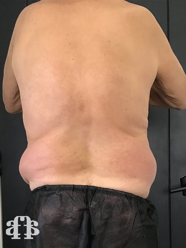 CoolSculpting Gallery - Patient 52660119 - Image 3
