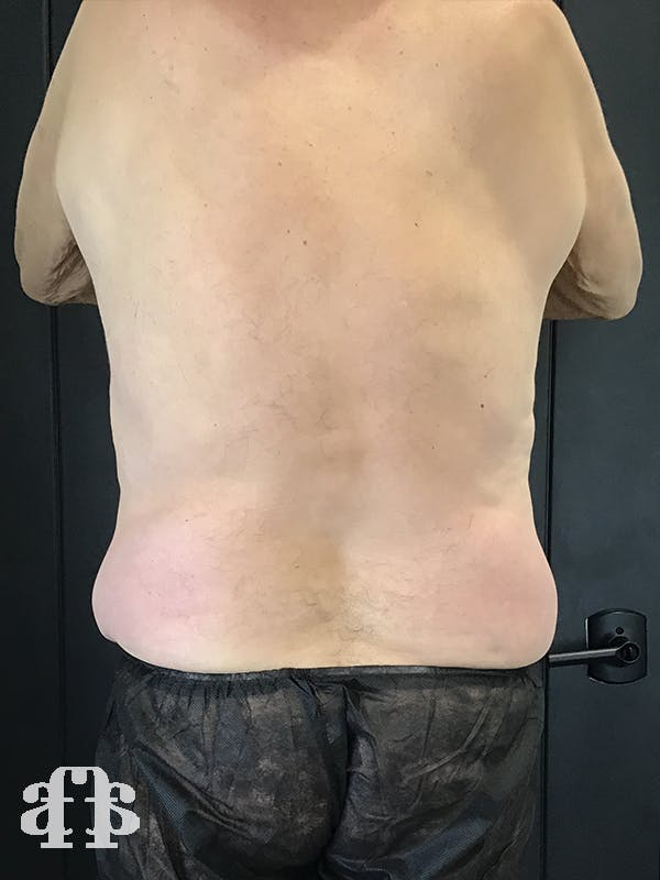 CoolSculpting Gallery - Patient 52660119 - Image 4