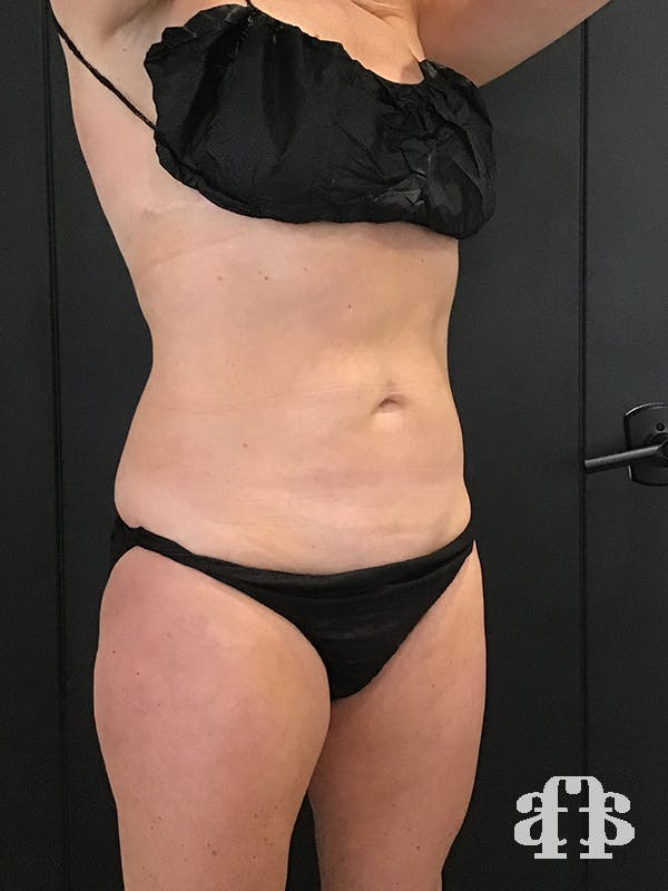 CoolSculpting Gallery - Patient 52660126 - Image 2