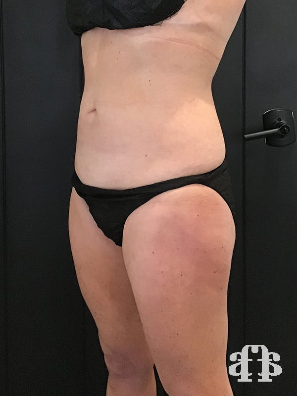 CoolSculpting Gallery - Patient 52660126 - Image 6