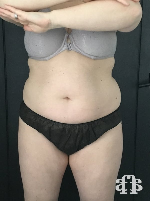 CoolSculpting Gallery - Patient 52660135 - Image 1