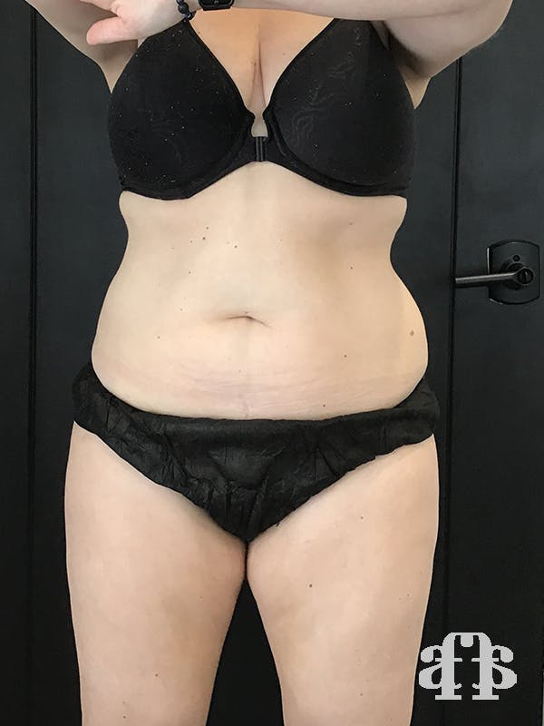 CoolSculpting Gallery - Patient 52660135 - Image 2