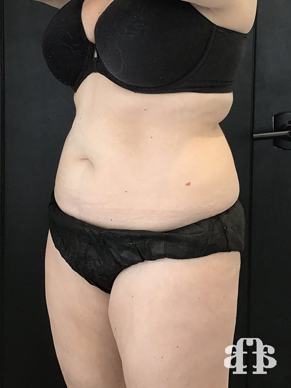 CoolSculpting Gallery - Patient 52660135 - Image 6
