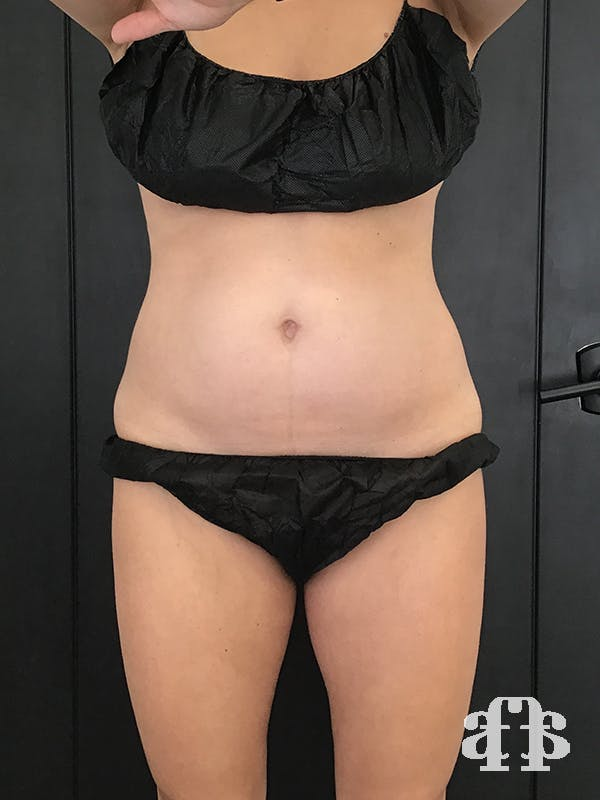 CoolSculpting Gallery - Patient 52660148 - Image 1