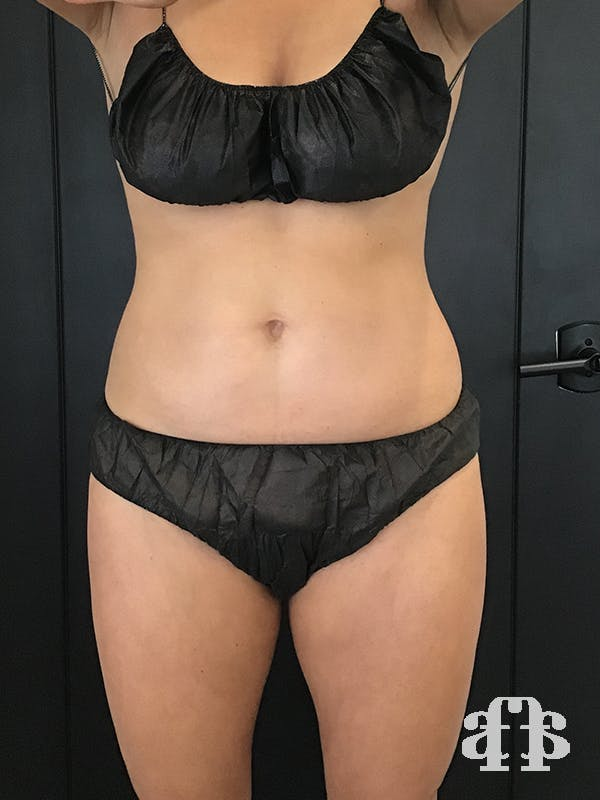 CoolSculpting Gallery - Patient 52660148 - Image 2