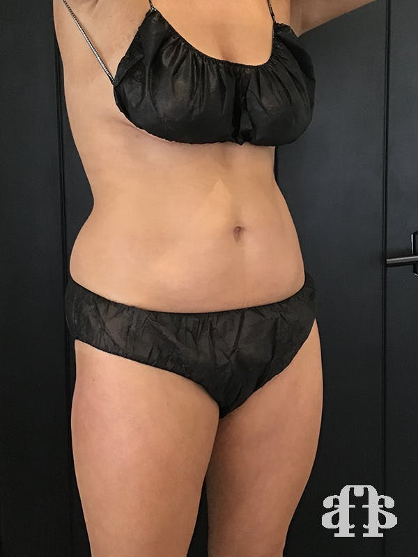 CoolSculpting Gallery - Patient 52660148 - Image 4