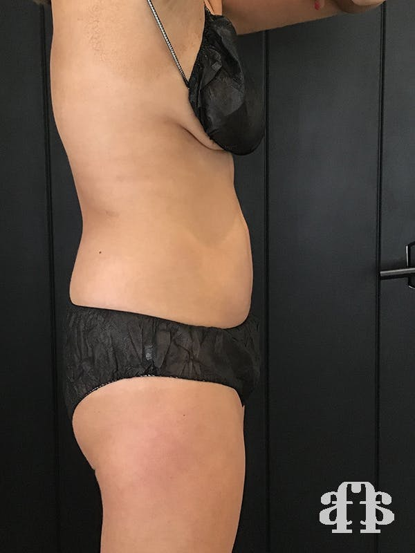CoolSculpting Gallery - Patient 52660148 - Image 6