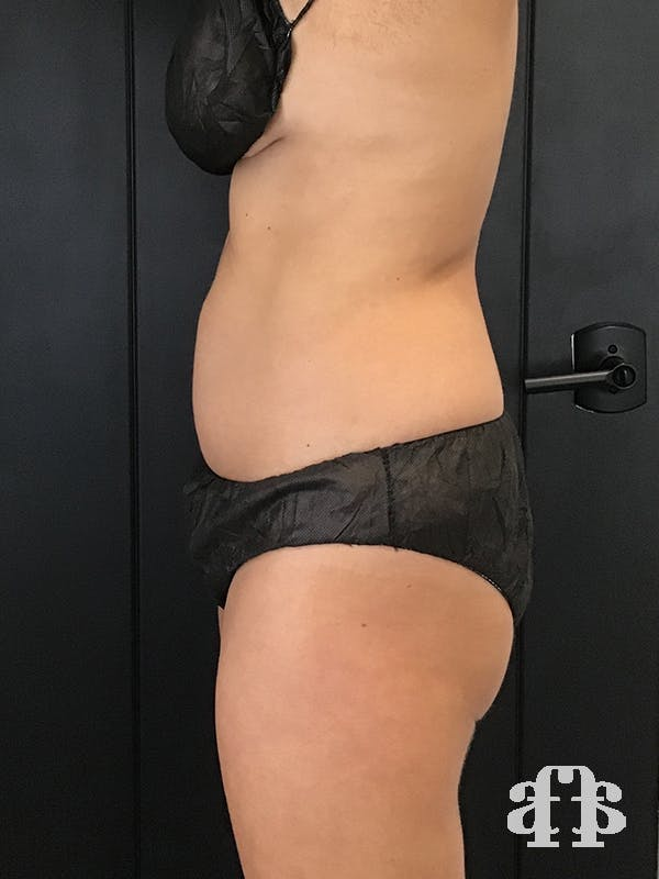 CoolSculpting Gallery - Patient 52660148 - Image 8