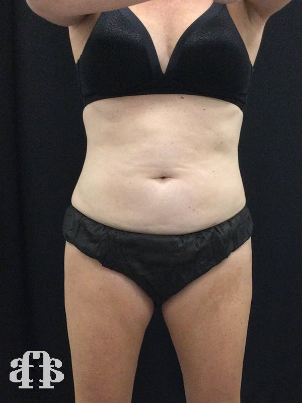 CoolSculpting Gallery - Patient 52660185 - Image 1