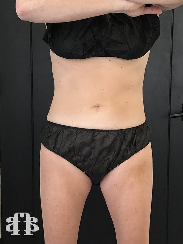 CoolSculpting Gallery - Patient 52660185 - Image 2