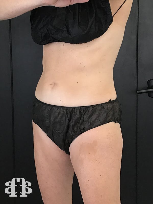 CoolSculpting Gallery - Patient 52660185 - Image 4