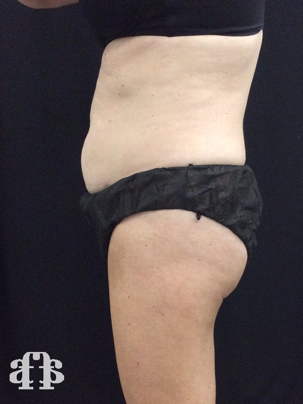 CoolSculpting Gallery - Patient 52660185 - Image 5