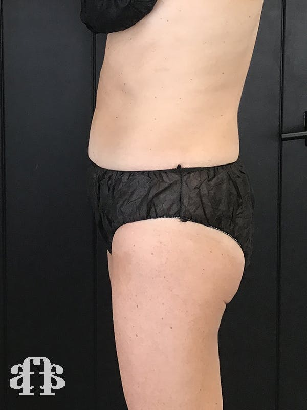 CoolSculpting Gallery - Patient 52660185 - Image 6