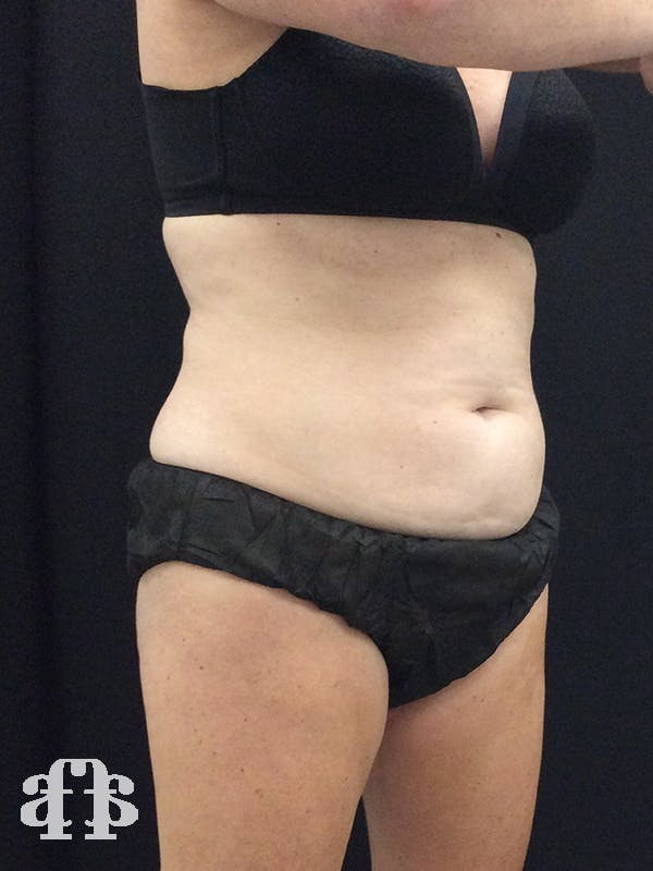 CoolSculpting Gallery - Patient 52660185 - Image 9