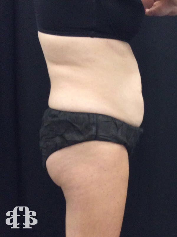 CoolSculpting Gallery - Patient 52660185 - Image 11