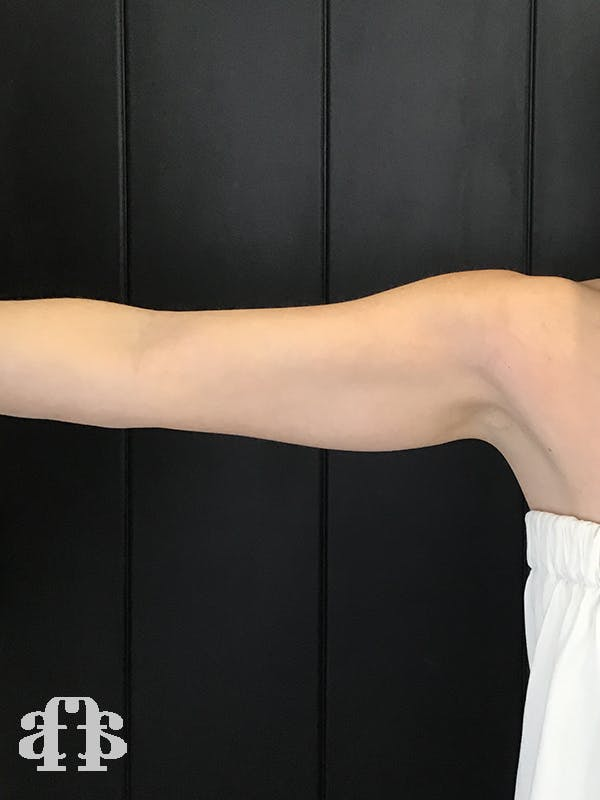 CoolSculpting Gallery - Patient 52660186 - Image 1